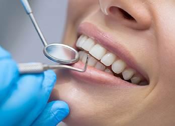 La pulizia dei denti è compresa nell'assistenza preventiva