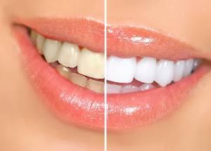 Profilassi dentale vs pulizia profonda