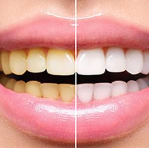 Denti gialli come prevenire
